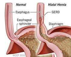 Learn about hiatal hernias from the Cleveland Clinic. Find out about what a hiatal hernia is, its symptoms, treatment using surgery & more.