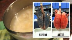 If You Smoke For More Than 5 Years, This Recipe Will Easily Clear Your Lungs!