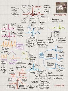 La Chuleta de Osler: Cardiología: Ondas características en el ECG