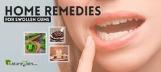 Here we present the best home remedies for swollen gums to treat the problem naturally at home without getting painful treatments. Home Remedies, Natural Remedies, Swollen Gum, Home Goods, Remedies, Natural Treatments, Household Items, Natural Home Remedies, Home Health Remedies