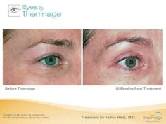 Eyelid Tightening with Thermage | Irvine, CA - Total Dermatology