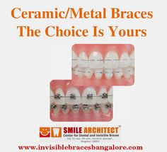#ceramicbraces are available as clear ceramic braces and tooth colored ceramic braces. For more details feel free to reply : smilearchitectbangalore@gmail.com Ceramic Braces, Invisible Braces, Teeth Braces, Tooth, Dental, Ceramics, Feelings, Health, Free