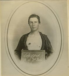 Gunshot wound of chest. Pvt. [Private] Judson Spofford. 10th Vermont Infantry. Civil War Harewood [Hospital]