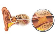 """Con regularidad, la trompa de Eustaquio, el conducto principal de nuestro oído, se obstruye por la acumulación de mucosidad de olor desagradable, lo que comúnmente se denominan """"tapones de cera"""". En consecuencia, nuestras capacidades auditivas disminuyen y, si no se trata con la celeridad que amerita, esta condición puede llegar a perforar el tímpano."""