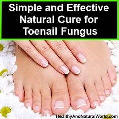 Simple and Effective Natural Cure for Toenail Fungus