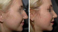 Fotografia przedstawiająca kobietę przed i po operacji nosa. Źródło zdjęcia: http://www.chirurgia-plastyczna.med.pl/zabieg.php?id=8&fot=1