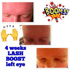 4weeks Lash Boost on left eye only