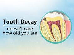 You may wonder why you're suddenly getting cavities when you haven't had them in years. One common cause of cavities in older adults is dry mouth, typically the result of medications