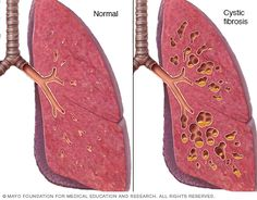 Normal lung versus lung with cystic fibrosis - Kais lungs looked like this only far worse