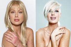 CariDee English during a psoriasis flare, and after... And she's a model!