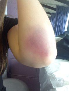 Elbow bruise