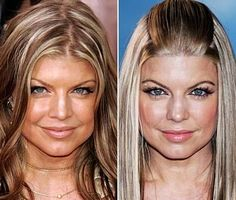 Did Fergie from the black eyed Peas have plastic surgery? Plastic Surgery Photos, Celebrity Plastic Surgery, Plastic Surgery Before After, Plastic Surgery Gone Wrong, Rhinoplasty Surgery, Beauty Science, Black Eyed Peas, Celebs, Celebrity