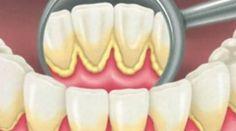 What causes teeth decay dental insurance plans,gum disease treatment kids dentist near me,smile dental clinic no bad breath. Oral Health, Health Tips, Health And Wellness, Teeth Health, Dental Hygiene, Dental Care, Tartar Removal, Plaque Removal, Teeth Care