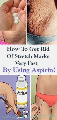 How To Get Rid Of Stretch Marks Very Fast By Using Aspirin!How To Get Rid Of Stretch Marks Very Fast By Using Aspirin