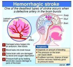 http://www.medindia.net/health-infographics/images/Health-disease-heart.jpg