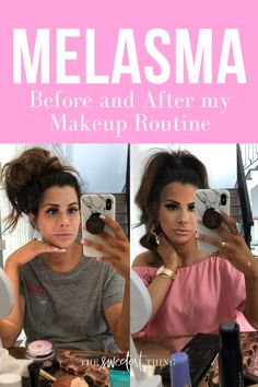Melasma Cover, before and after my Makeup Routine. Emily Gemma, The Sweetest Thing Blog #EmilyGemma #TheSweetestThingBlog #BeforeandAfter #Melasma