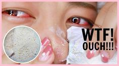 PAINFUL Blackhead Removal Product!