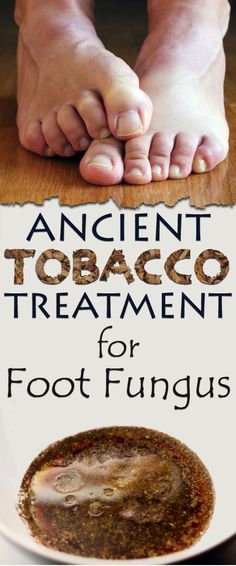 Apparently, tobacco is good for something. An ancient treatment that can kill foot fungus was right under our noses.Foot fungus is unpleasant in many ways