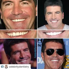 #Repost @celebritydentistry with @repostapp.  Simon Cowell is known for his wisecracks and insults while judging contestants on shows like The X Factor and America's Got Talent. Simon is also no stranger to cosmetic dental work. Cowell is missing one of his front teeth (right lateral incisor) and his canine tooth has taken its place. However a few trips to the cosmetic dentist for veneers have balanced out his upper arch and provided him with a smile fit for Hollywood!  . . . . #dentistry…