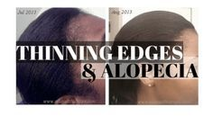 Thinning Edges & Alopecia relaxedthairapy.com
