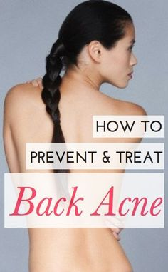 Do you have tips on getting rid of back acne?