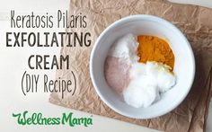 Ever notice little red bumps on the backs of your arms? It's a skin condition called keratosis pilaris. Learn how to make a simple cream to combat it.