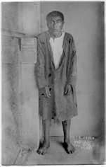 """Ishi (Native American,) last of the Yahi Tribe, of the Yana people, barely walking, stumbled out of the forest in 1911, half starved. A California Museum Language professor took him in to be """"studied."""" Ishi died of Tuberculosis in 1916..the last of his people and tribe, of the Yana people. Most of his tribe, were killed in the California Gold Rush, by greedy miners.:"""