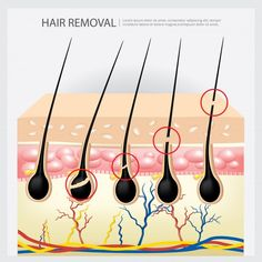 Hair removal example illustration | Premium Vector #Freepik #vector #hair #beauty #health #science Hair Removal, Hair Vector, Ad Of The World, Science, Proper Diet, Hair Care Tips, About Hair, Damaged Hair, Hair Brush