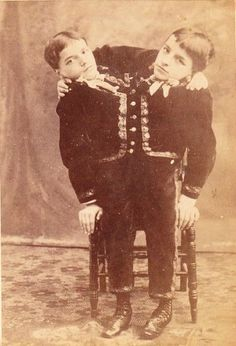 The Tocci twins, Giacomo and Giovanni. - 7 Most Incredible Siamese Twins in History