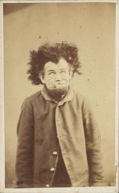 . Aside from this photo, the family did not speak of this cousin, interred in the attic as a child, and later an asylum.