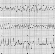 Long QT Syndrome Knowledge Base: Diagnosis & Evaluation