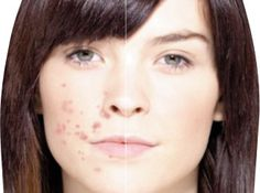 Ask the Esthetician: Top Reasons for Acne Scarring Beauty Care, Beauty Hacks, Acne Reasons, Diy Beauté, Home Remedies For Acne, Best Natural Skin Care, Michelle Phan, Tips Belleza, Skin Problems