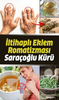 The cause is unknown inflammatory joint rheumatism It is called rheumatoid arthritis. It is said tha What Is Rheumatoid Arthritis, Arthritis Causes, Rheumatic Diseases, Stress Causes, Regular Exercise, Feel Tired, Immune System, Acupuncture, Masks