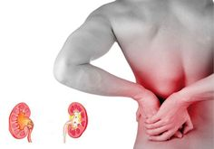 Kidney stones can cause severe pain along with a range of other symptoms. Small kidney stones can cause pain as they go through the urinary tract. Large stones may become stuck in the kidney, ureter or bladder causing pain and blockage of the flow of urine. This can lead to infection and kidney damage.