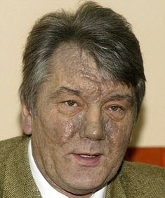 Ukraines ex-president recalls his poisoning 14 years ago -  Yushchenko was fed dioxin chemical found in Agent Orange in murder attempt  He was the pro-European candidate standing against pro-Russian Yanukovych  Yushchenko blames Russia for the poisoning which he has described in detail  He wants European countries to stick together and face Russian intervention  By Iain Burns For Mailonline  Published: 07:30 EDT 2 April 2018 | Updated: 08:07 EDT 2 April 2018  Former Ukrainian president…