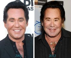 Wayne Newton Before And After Plastic Surgery Wayne Newton is one of the celebrities who had some unfortunately botched plastic surgery. His facelift and Botox injections left his face. Bad Celebrity Plastic Surgery, Celebrity Surgery, Bad Plastic Surgeries, Plastic Surgery Procedures, Plastic Surgery Before After, Plastic Surgery Gone Wrong, Lisa Rinna, Wayne Newton Plastic Surgery, Facelift Before And After