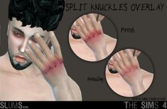 Split Knuckles Overlay for YAU (Fresh & Healing Options) A simple overlay that adds cuts and bruising to your rebel sim's knuckles. Comes with 2 versions and should work with any EA or CC skintones. - Found under the Gloves category for both. Los Sims 4 Mods, Sims 4 Game Mods, Sims 4 Mods Clothes, Sims 4 Clothing, Sims 4 Cas, Sims Cc, Maxis, Skyrim, Sims 4 Tattoos