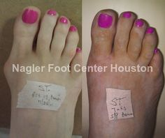If you are looking for a foot doctor in Houston, just visit Foothouston.com .Their foot & ankles specialists are best in Texas.