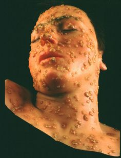 Smallpox lesions on face of 15 year old boy - wax model  Maker: William Gottheil  1917.