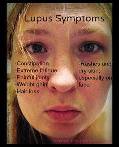 Pain Lupus symptoms by flickr Phoney Nickle