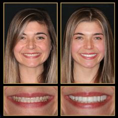 As you can see we are experts at Smile Makeovers... we love what we can do for you! Call 512.333.7777 for a free consult.  #veneers #veneerscost #cosmeticdentistry #Smile #austincosmeticdentistry #Cosmeticdentist #cosmeticdentistaustin #reconstructivedentist #dentalimplants #smilemakeover #ATX #Austin #cosmeticdentistsofaustin #VeneersAustin #VeneersPorcelainCosts #sedationdentistaustin #veneersbeforeandafter Express Smile, Tooth Crown, Sedation Dentistry, Dental Veneers, Porcelain Veneers, Smile Makeover, Dental Procedures