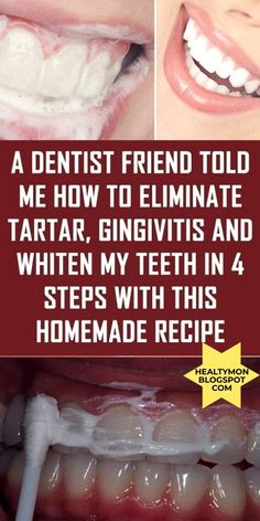 A Dentist Friend Told Me How To Eliminate Tartar, Gingivitis And Whiten My Teeth In 4 Steps With This Homemade Recipe – Health Care Fitness Zoom Teeth Whitening, Activated Charcoal Teeth Whitening, Teeth Whitening Remedies, Homemade Teeth Whitening, Natural Teeth Whitening, Whitening Kit, Teeth Health, Healthy Teeth, Oral Health