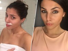 Model Stina Sander Loses Thousands of Followers After Sharing Real-Life Instagram Photos of Her Facial Hair Removal, Chipped Pedicure and Colonic http://www.people.com/article/stina-sanders-posts-unflattering-instagram-photos-loses-thousands-followers #InstagramNews #InstagramTips