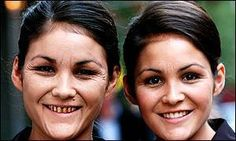 Need a reason to quit smoking? Check this out....This image shows 2 twins where one smokes and the other does not. Though they are the same age, its obvious to the eye which of the two look...