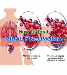 Know About Various Effective #Treatments For #Viral #Pneumonia -   #ViralPneumonia #ViralPneumoniaTreatment #HowToTreatViralPneumonia #PneumoniaTreatment