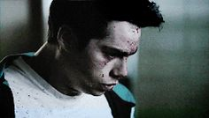 How can someone look so good with that much blood on their face??