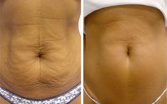 Beauty Tips & Personal Health Care: 5 Methods For Tightening The Skin Around The Stomach