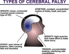 How to Take Care of Someone With Cerebral Palsy thumbnail