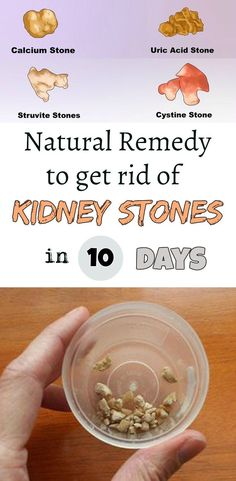 Natural remedy to get rid of kidney stones in 10 days! - : Natural remedy to get rid of kidney stones in 10 days! Natural Health Remedies, Natural Cures, Natural Healing, Natural Medicine, Herbal Medicine, Health And Wellness, Health And Beauty, Health Tips, Healthy Life