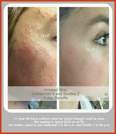 Acne Scar Removal - How to Most Effectively Eliminate Ice Pick Acne Scars >>> Visit the image link for more details. #AcneScarRemoval